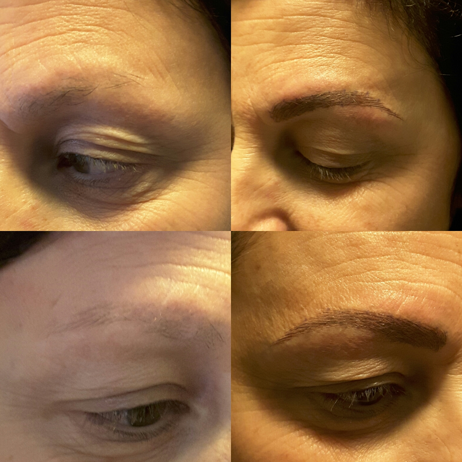Microblading Eyebrow Restoration Bradford Laser Centre